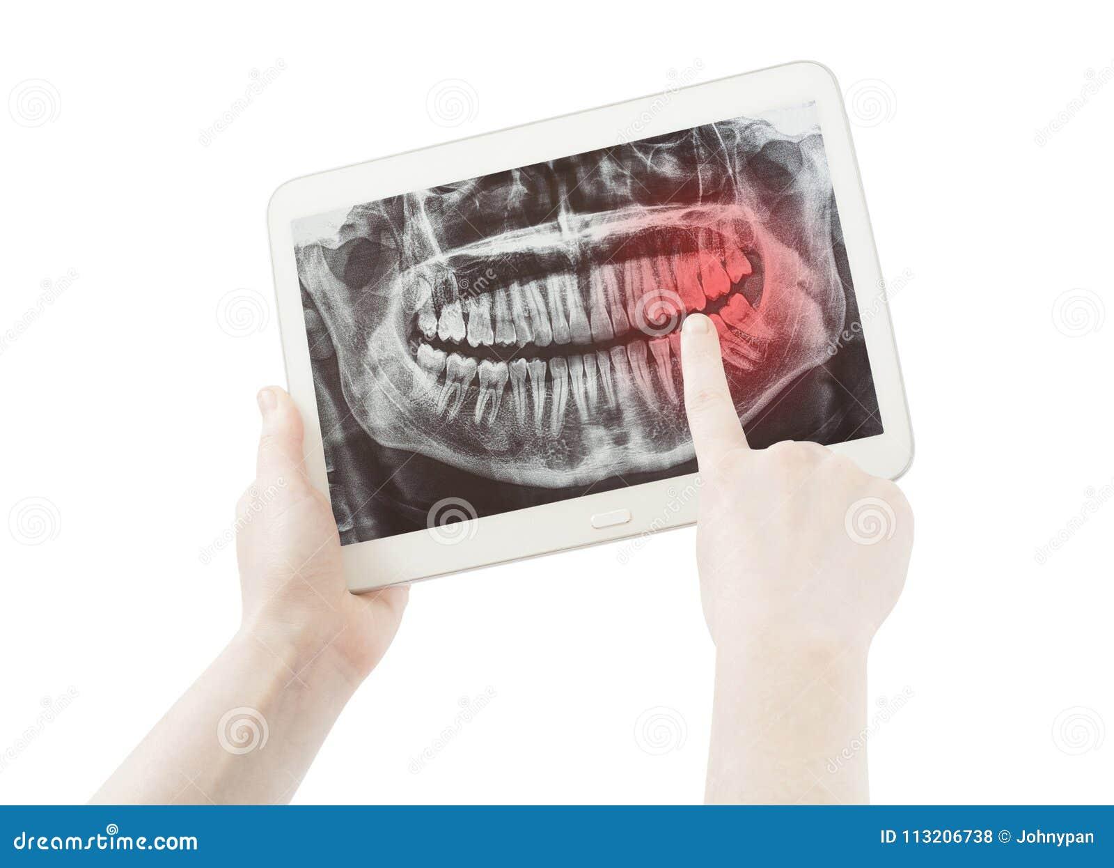 Handen die pijn op tandenradiologie of radiografie en PC-tablet tonen