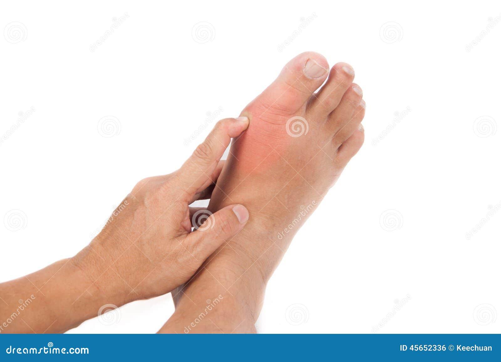 jicht voet dieet