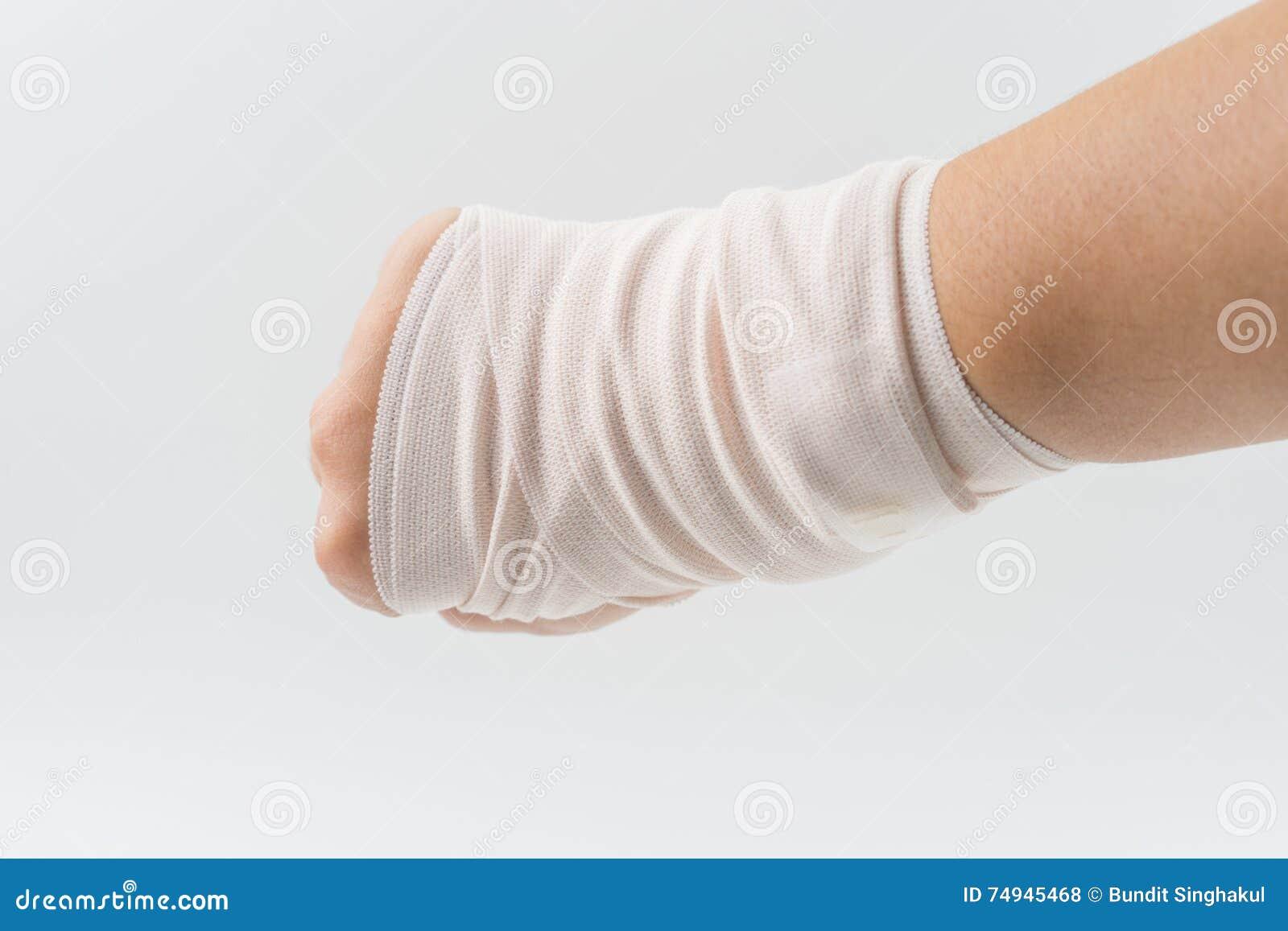 Handknochen Gebrochen Vom Unfall Mit Armschiene Stockfoto - Bild von ...