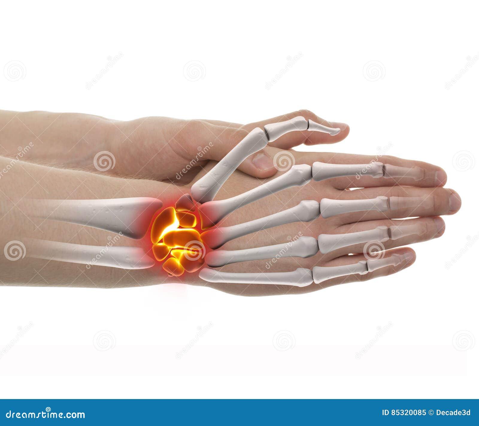 Handleden smärtar - studioskottet med illustrationen som 3D isoleras på vit