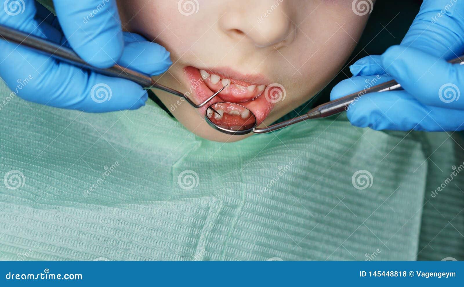 Little girl in dental clinic
