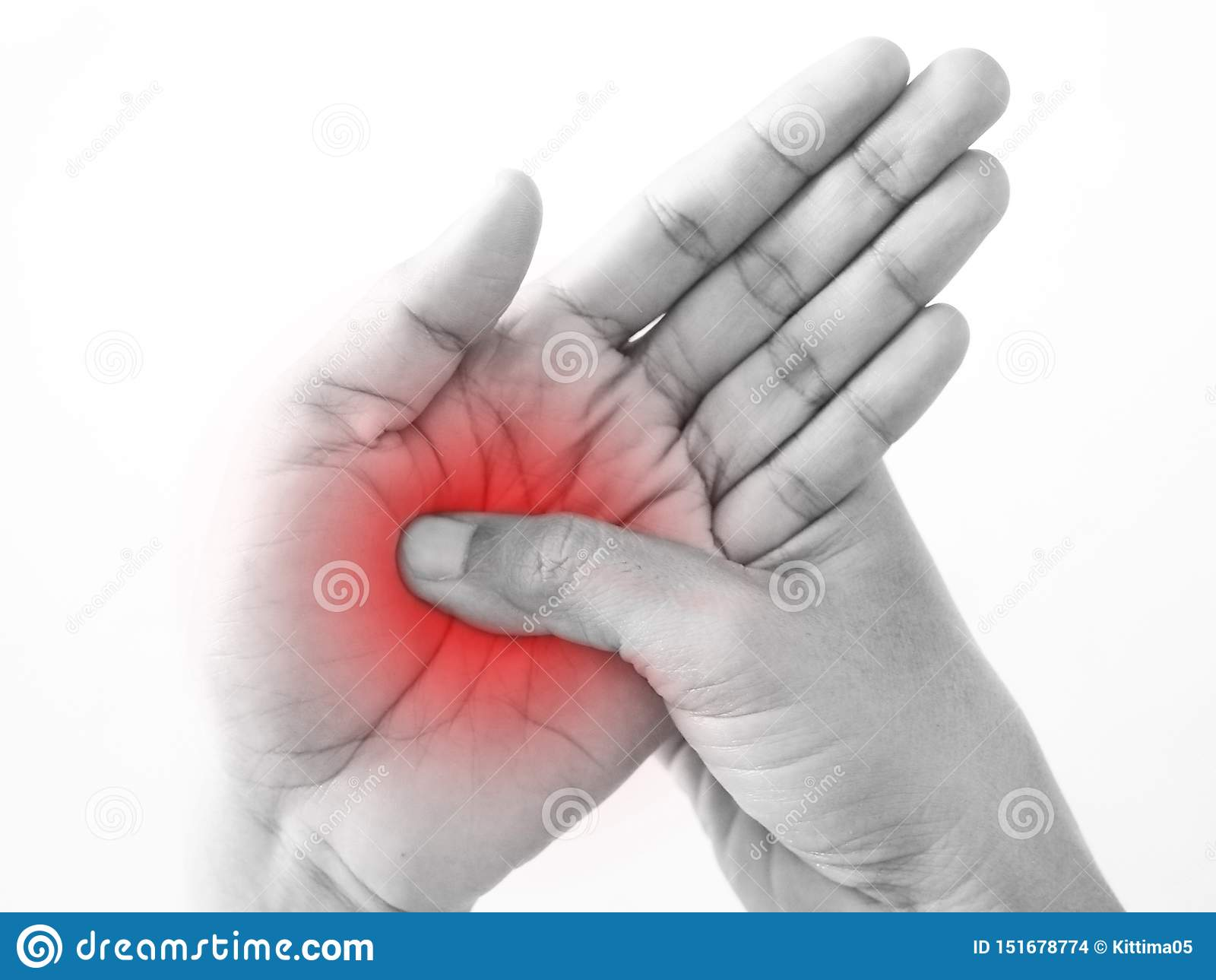 Handskadan gömma i handflatan från perifer neuropathy för arbete