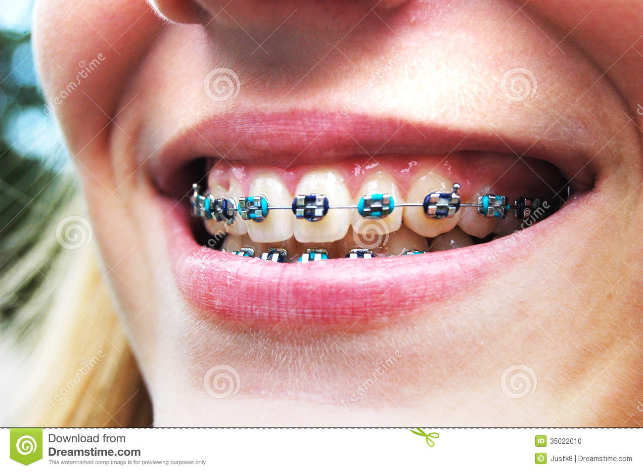 AFO - these braces jus...