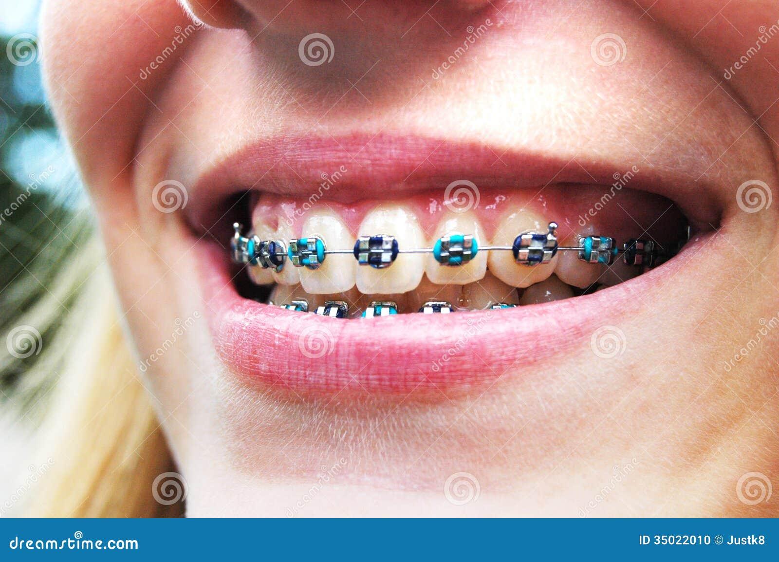 Happy Braces Stock Photo Image 35022010