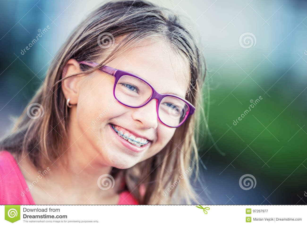 Join. agree Cute teens with braces glasses excited too