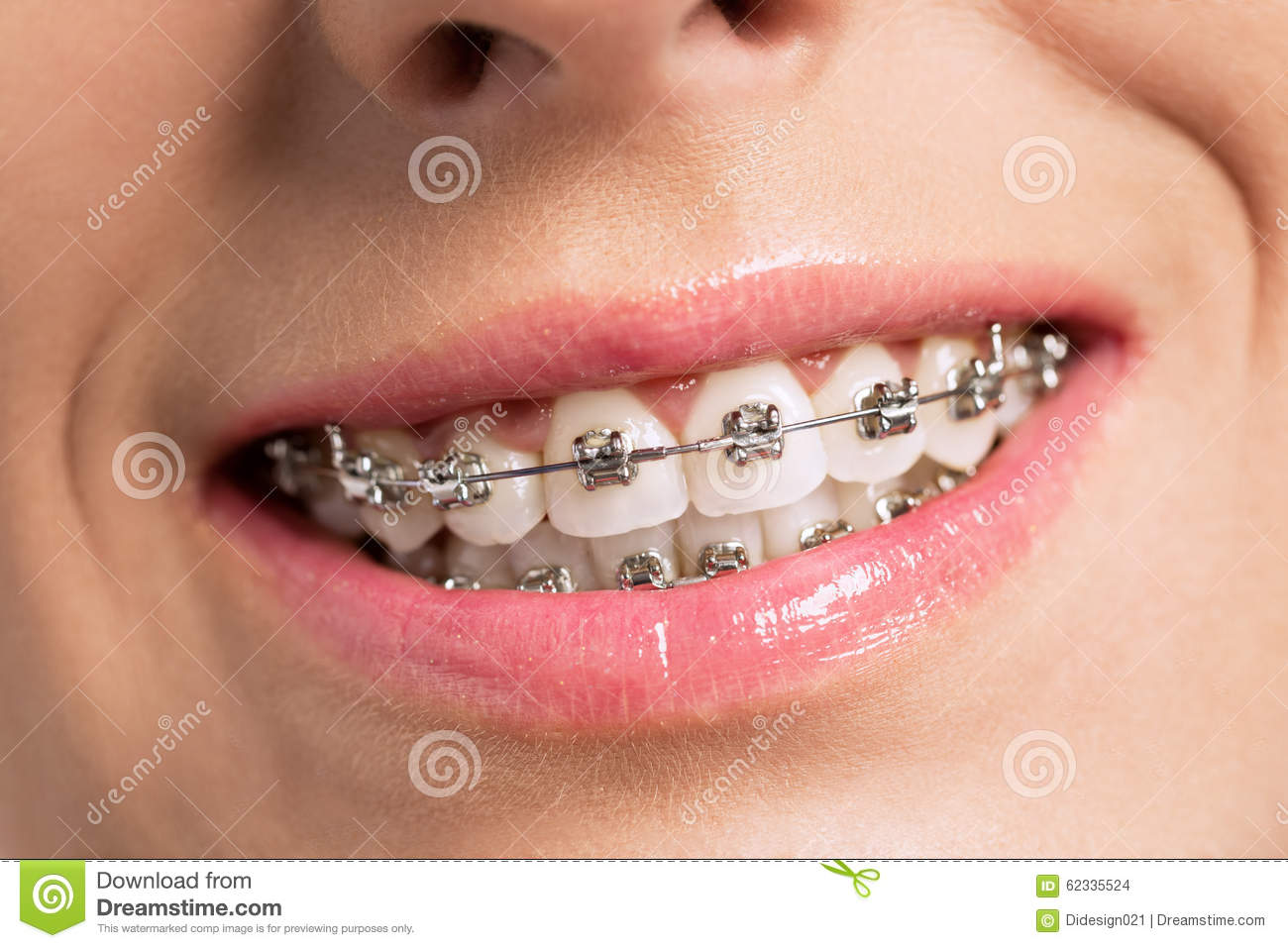 Perfect Teeth After Braces Tumblr   www.imgkid.com - The ...