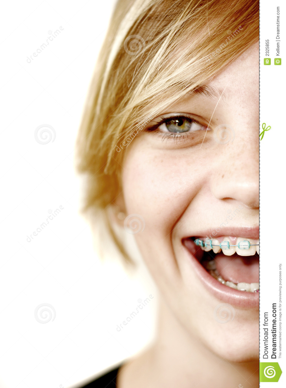 teen with braces free