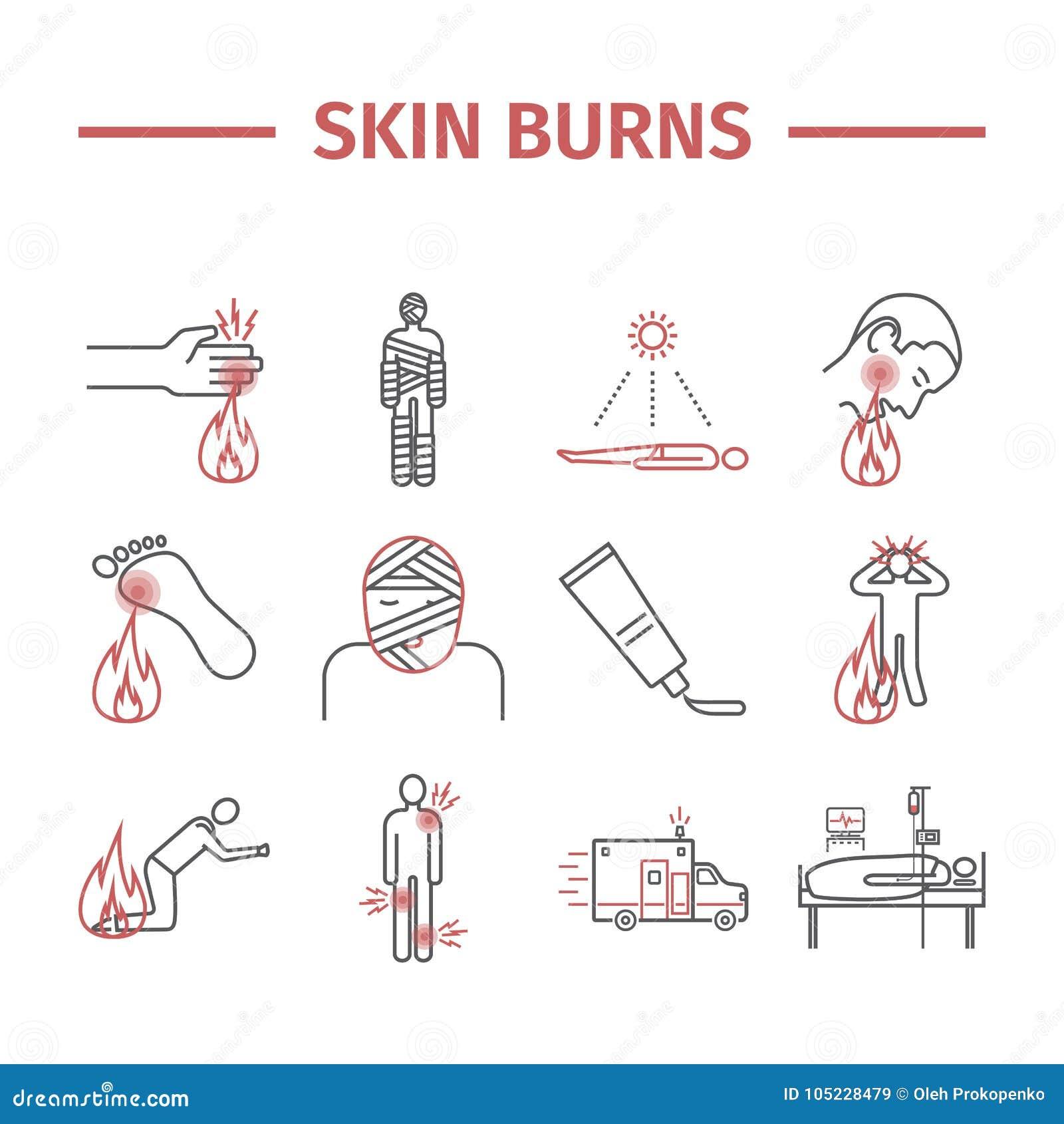 Haut brennt kine Ikonen behandlung Photorealistic Ausschnittskizze