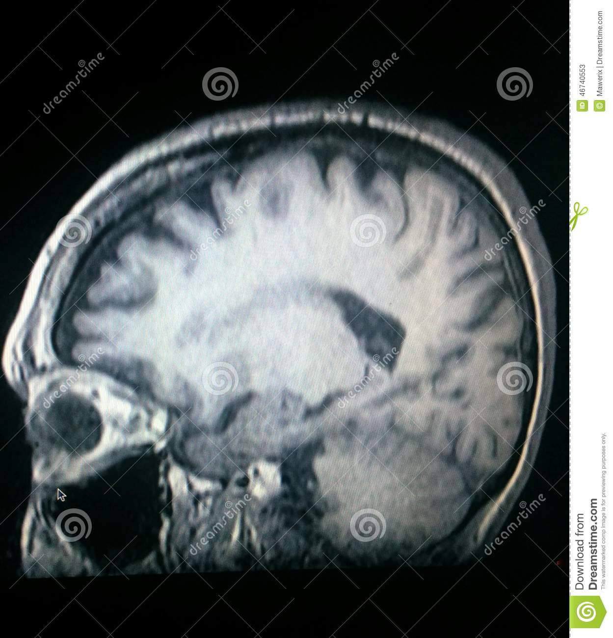Amygdala Stock Photos - Royalty Free Images - Dreamstime
