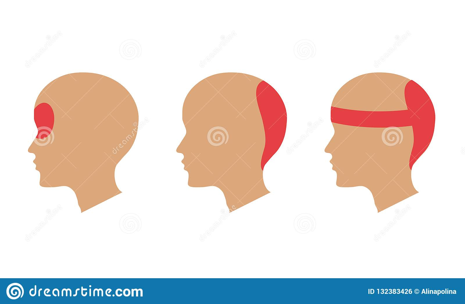 headache different areas of head pain stock illustration  diagram of head pain #15
