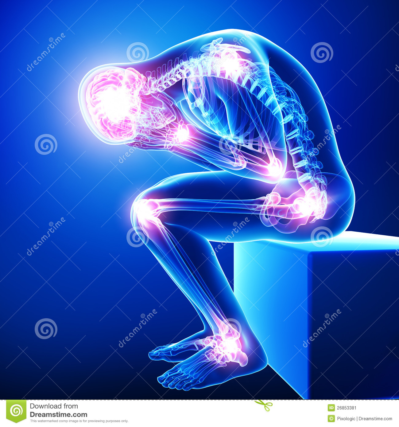headache    migraine with joint pain stock image