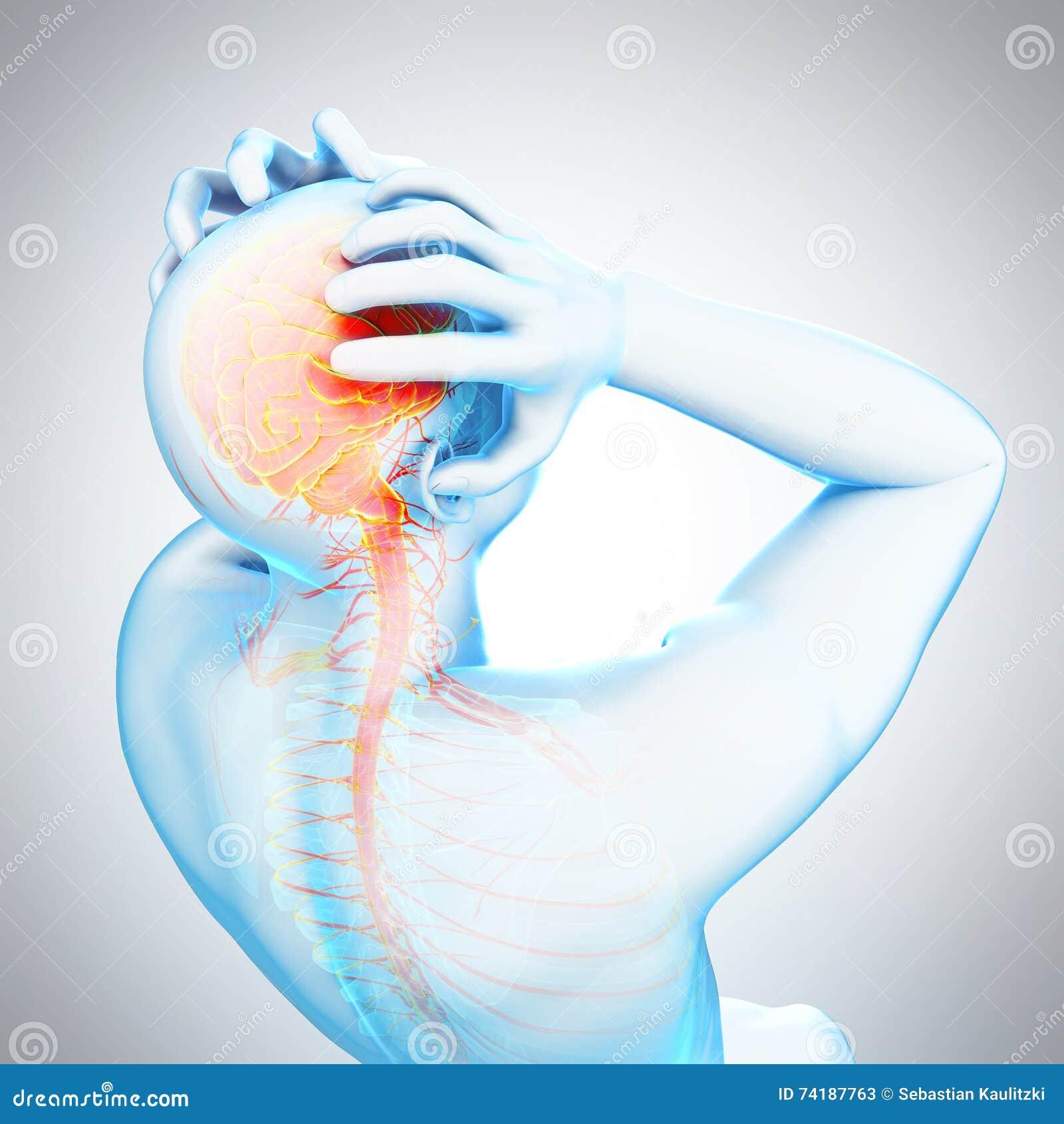 Headache/migrena