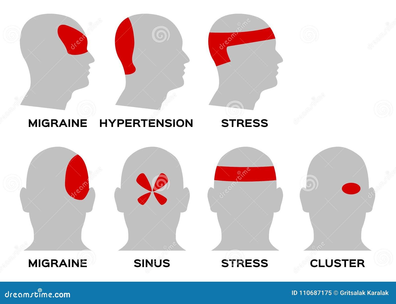 headache type organ and anatomy concept stock illustration illustration of cluster migraine. Black Bedroom Furniture Sets. Home Design Ideas