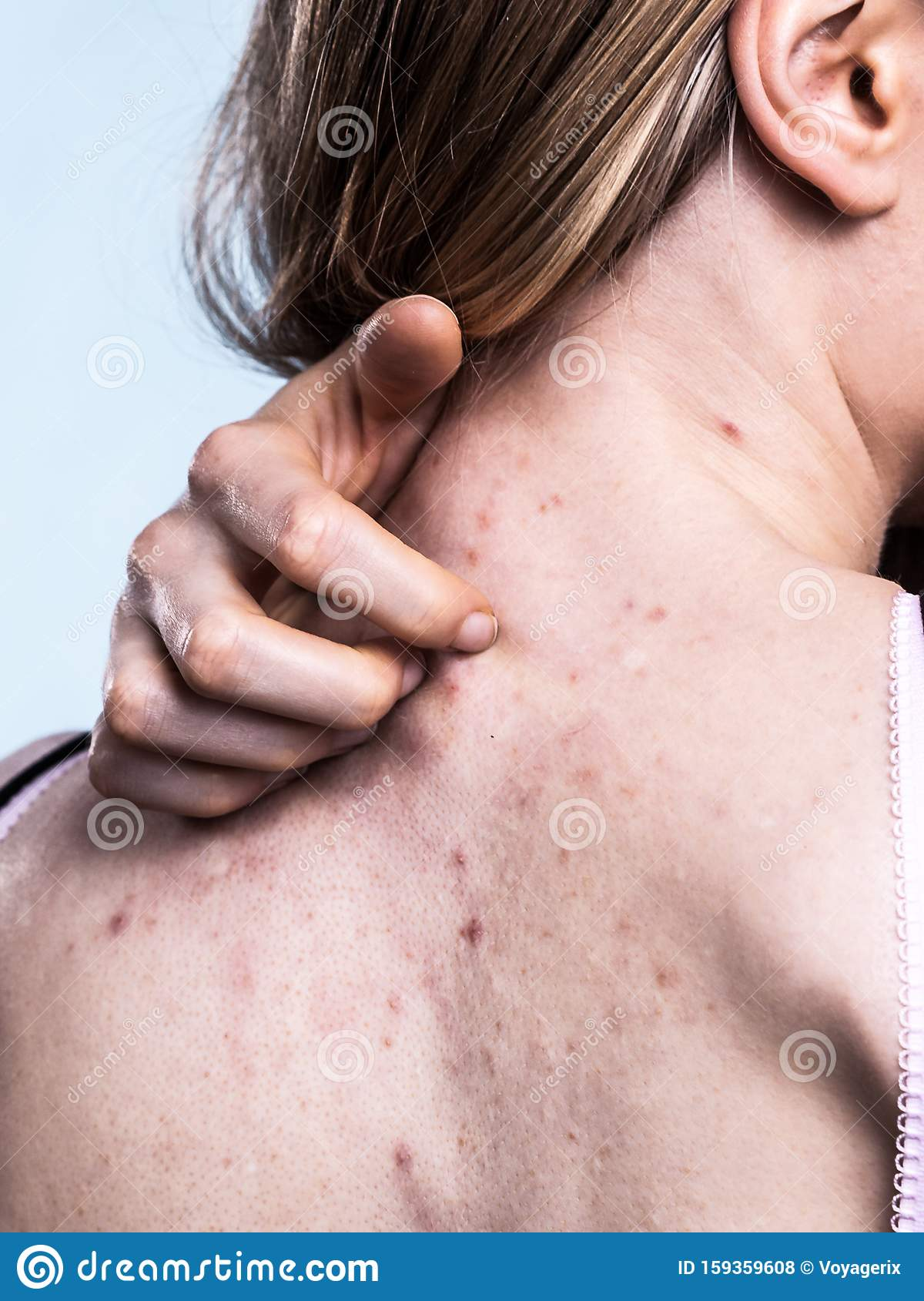 Woman With Skin Problem Acne On Back Stock Photo - Image ...