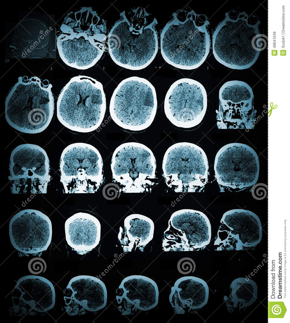 Healthcare and medical wallpaper with the CT