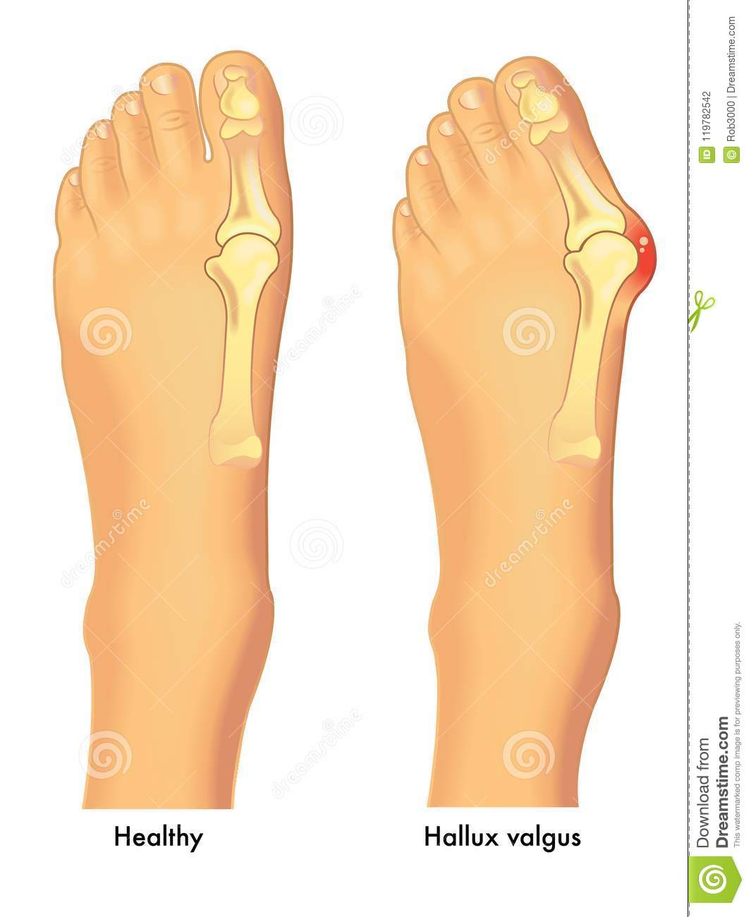 Healthy foot and foot with bunion