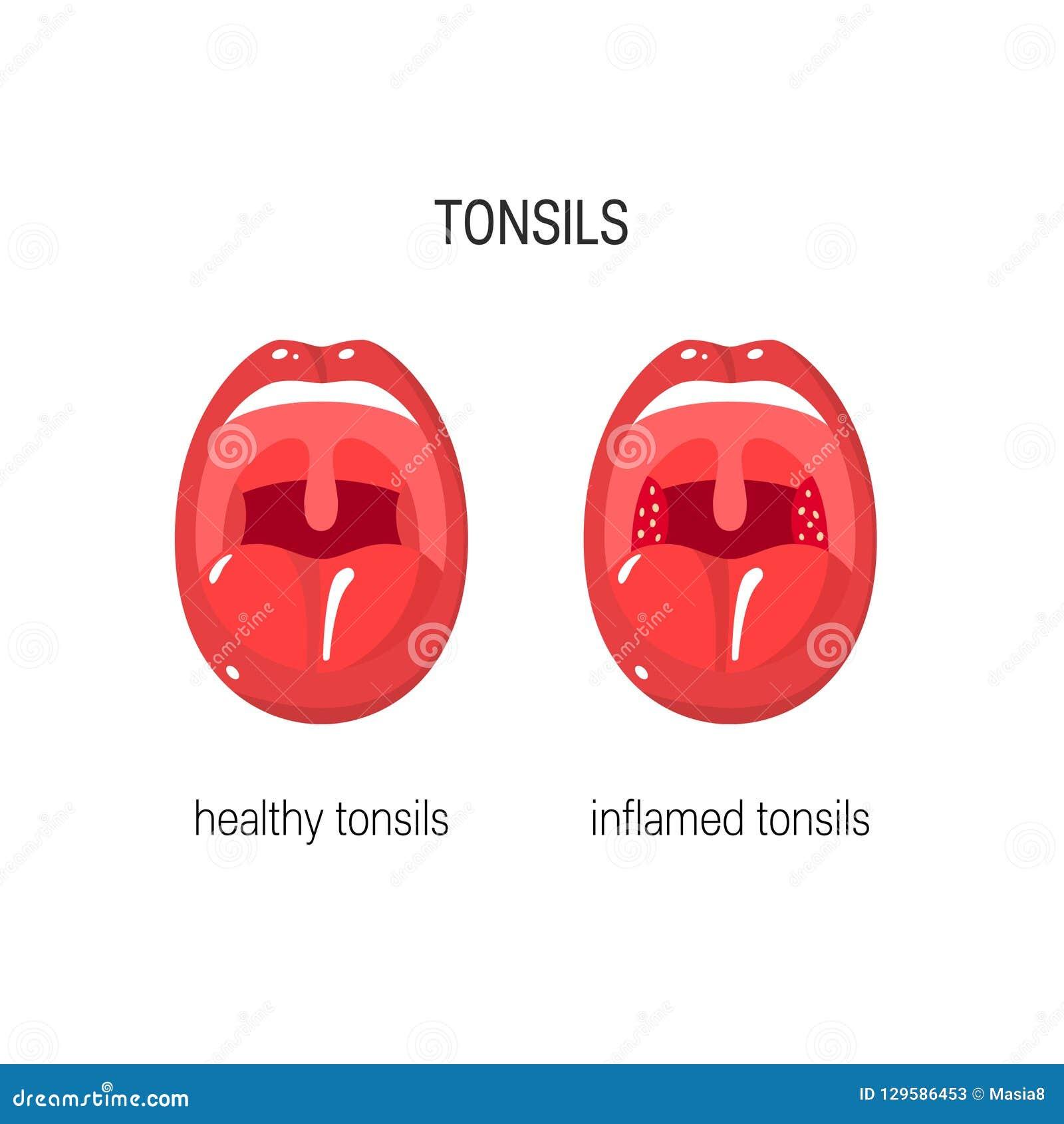 Tonsils Vector Illustration Stock Vector Illustration Of