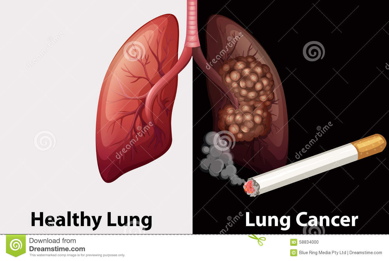 healthy lung against lung cancer diagram stock vector illustration