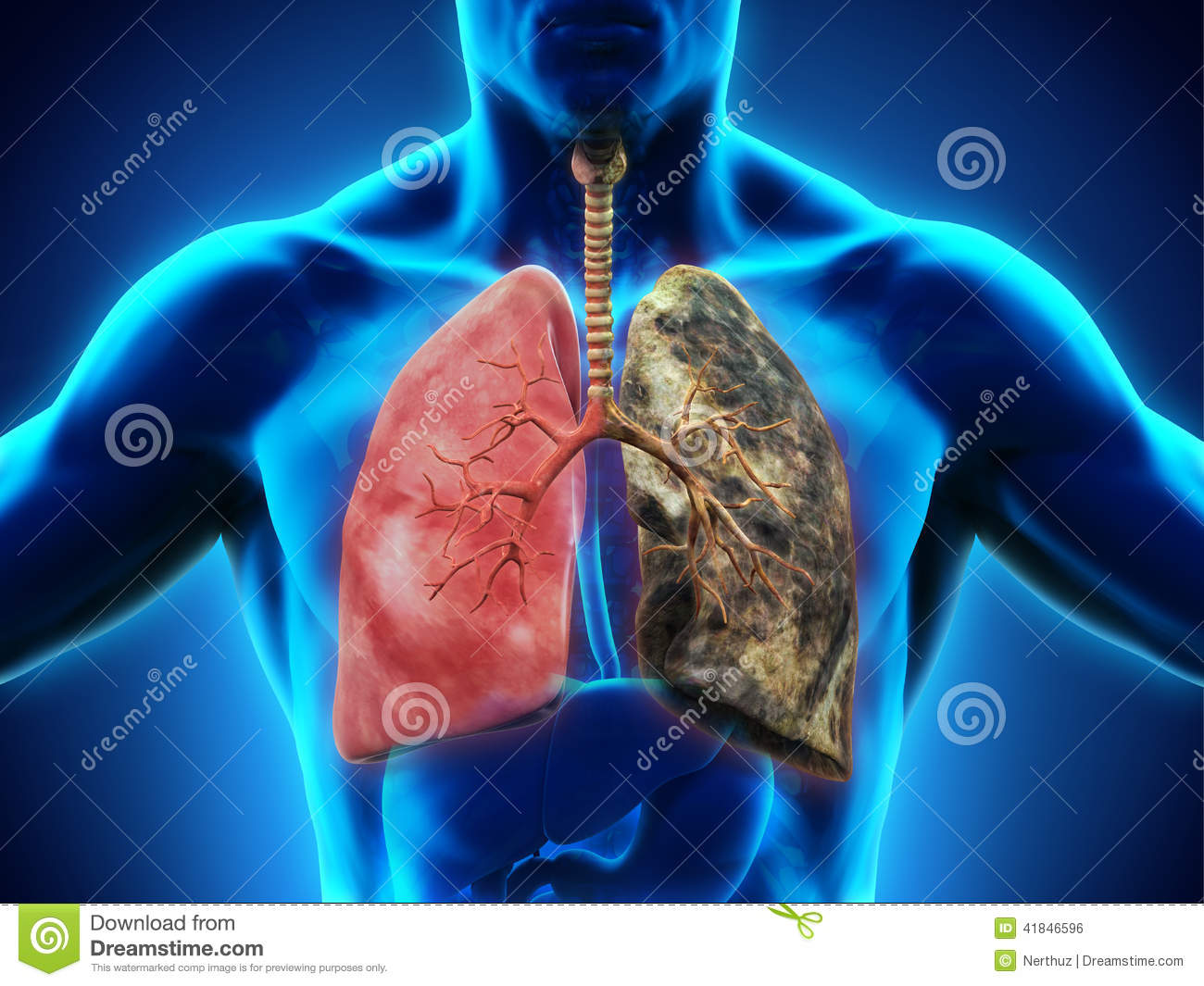 healthy lung and smokers lung stock illustration illustration of