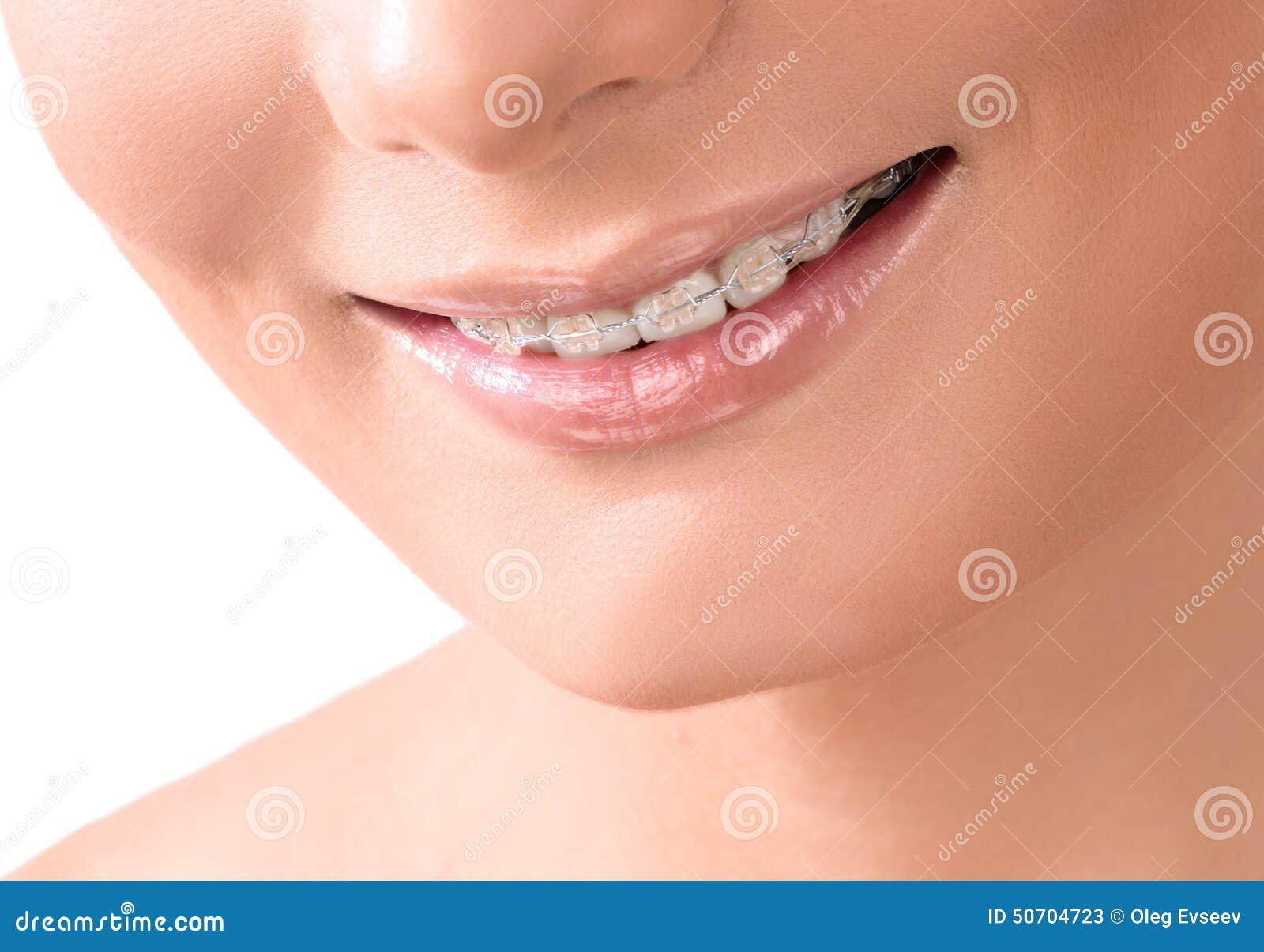 Healthy Smile. Teeth Whitening. Dental care
