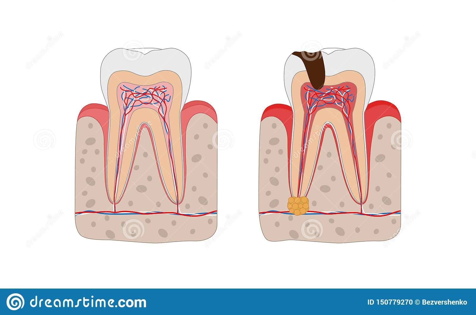 Pulpitis And Healthy Tooth Vector Illustration
