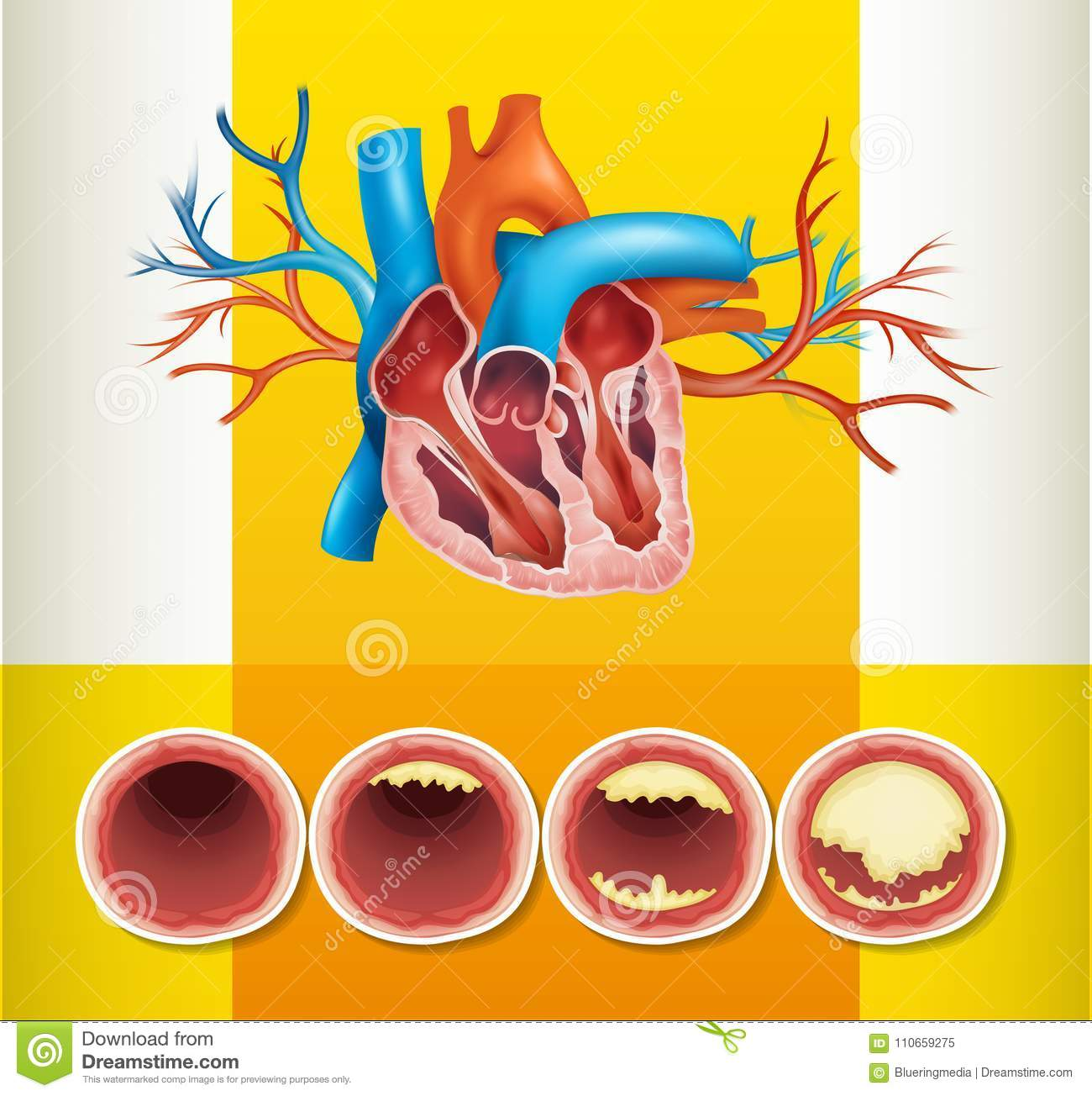 Heart Anatomy And Fat In Vein Stock Vector Illustration Of Medical
