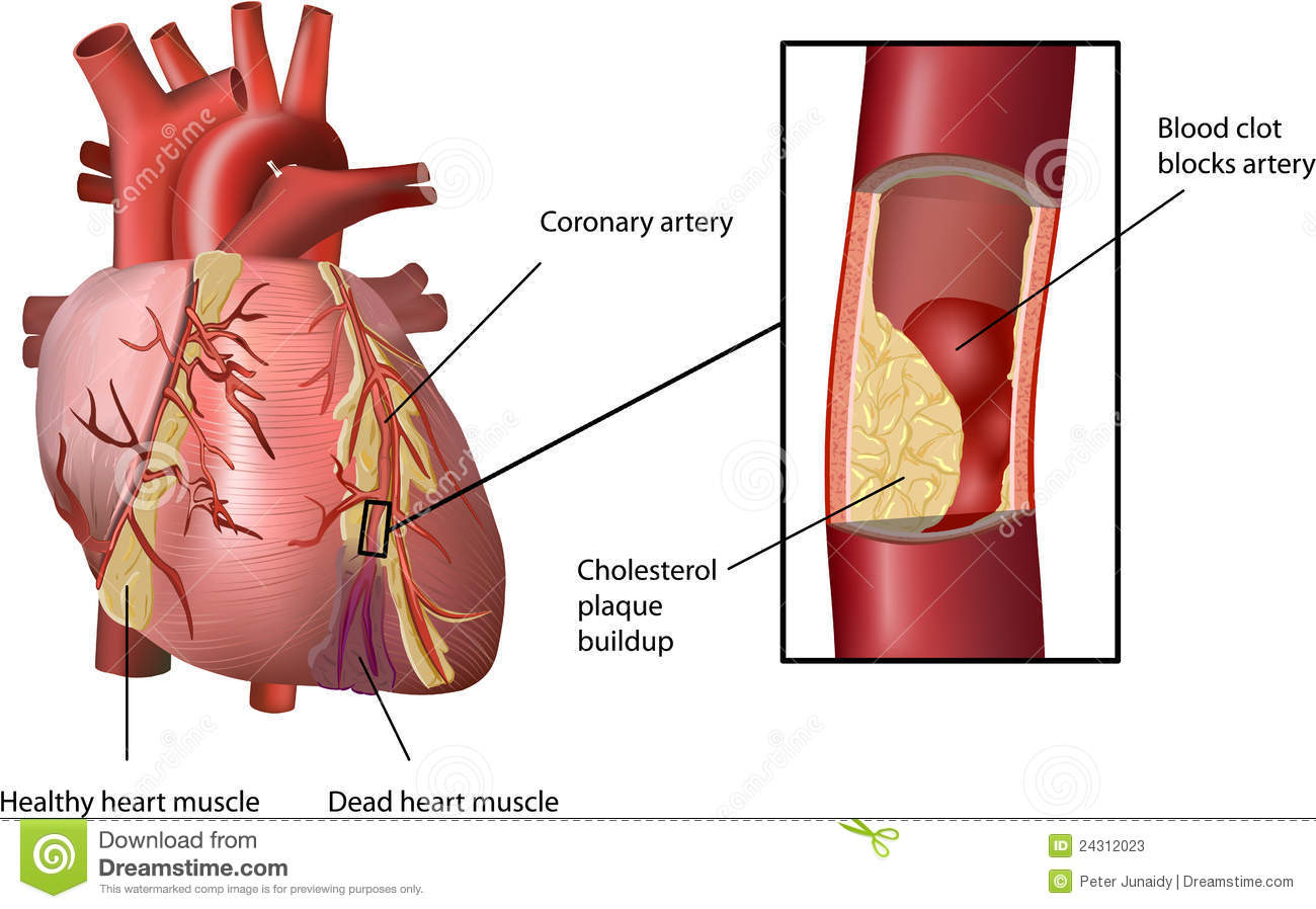 Cholesterol in human heart stock vector image of background heart attack caused by cholesterol stock photos ccuart Images