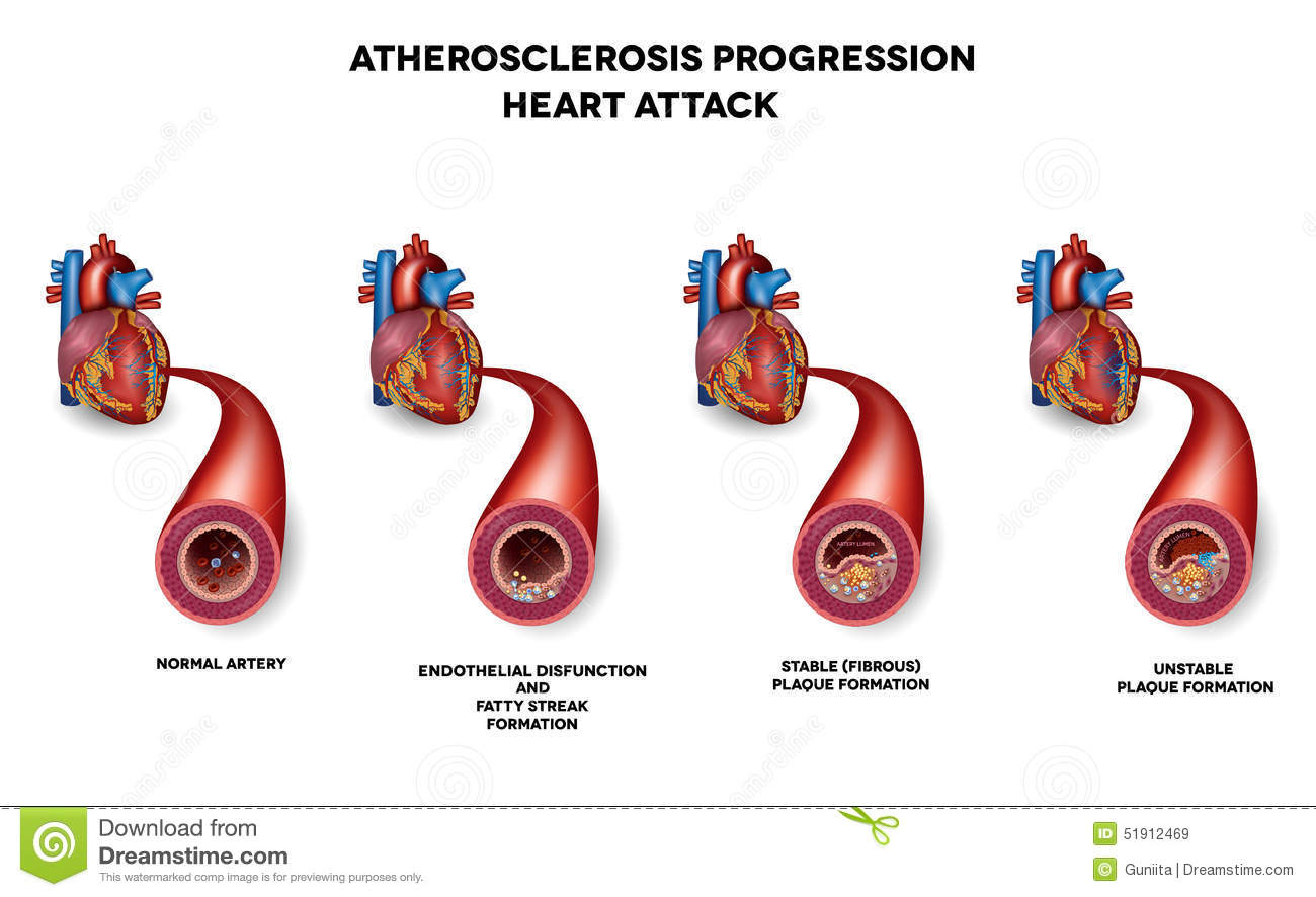 Stock Illustration Heart Attack Coronary Artery Disease Muscle Damage Due To Blood Clot Very Detailed Illustration Fatty Image51912469 on human circulatory system diagram