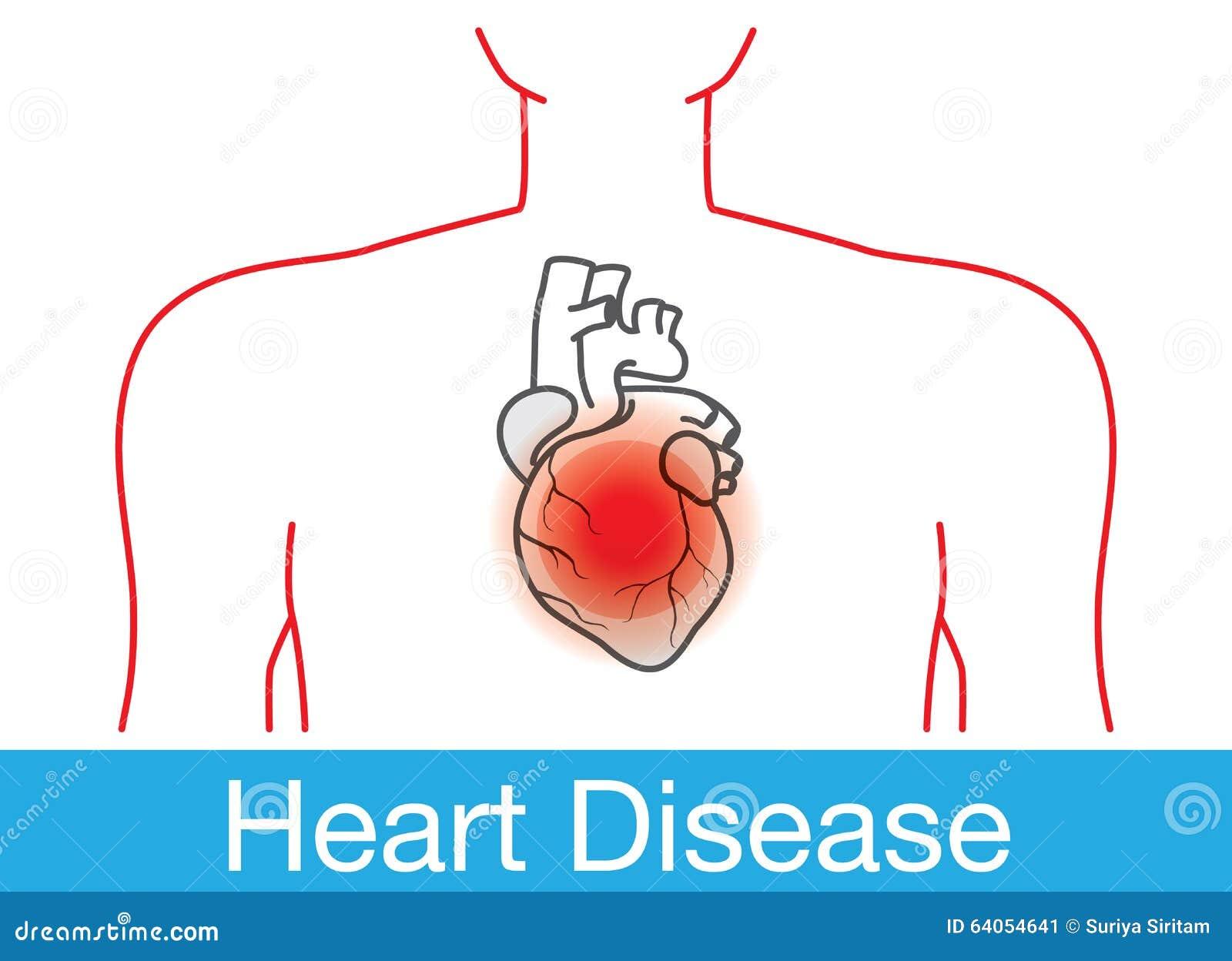 Heart attack happens stock vector illustration of diagram 64054641 heart attack happens ccuart Choice Image