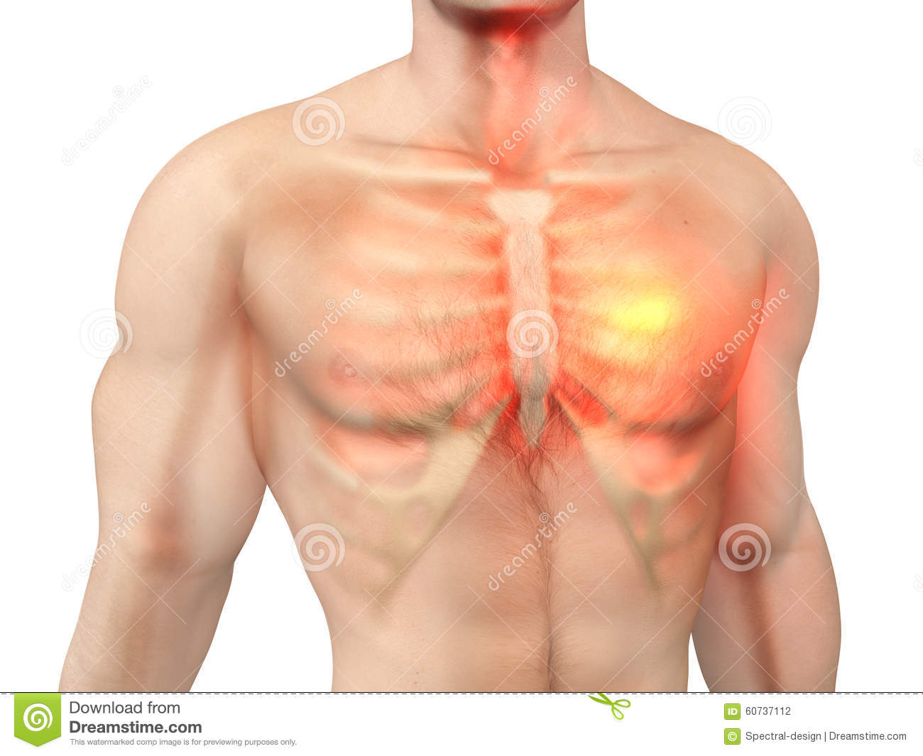 Heart Attack In A Male Body Stock Illustration Illustration Of