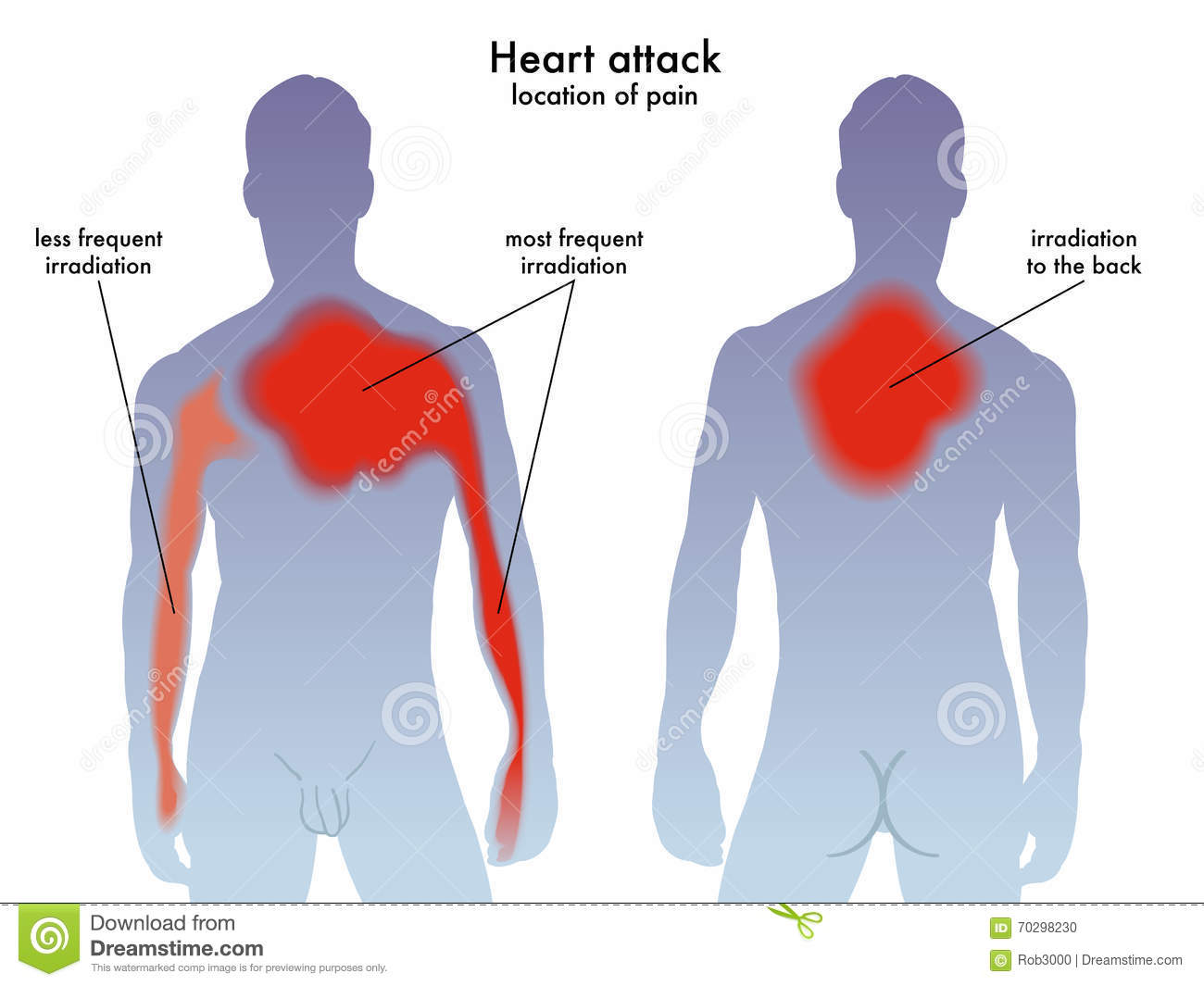 heart attack pain location stock illustration - image: 70298230, Cephalic vein