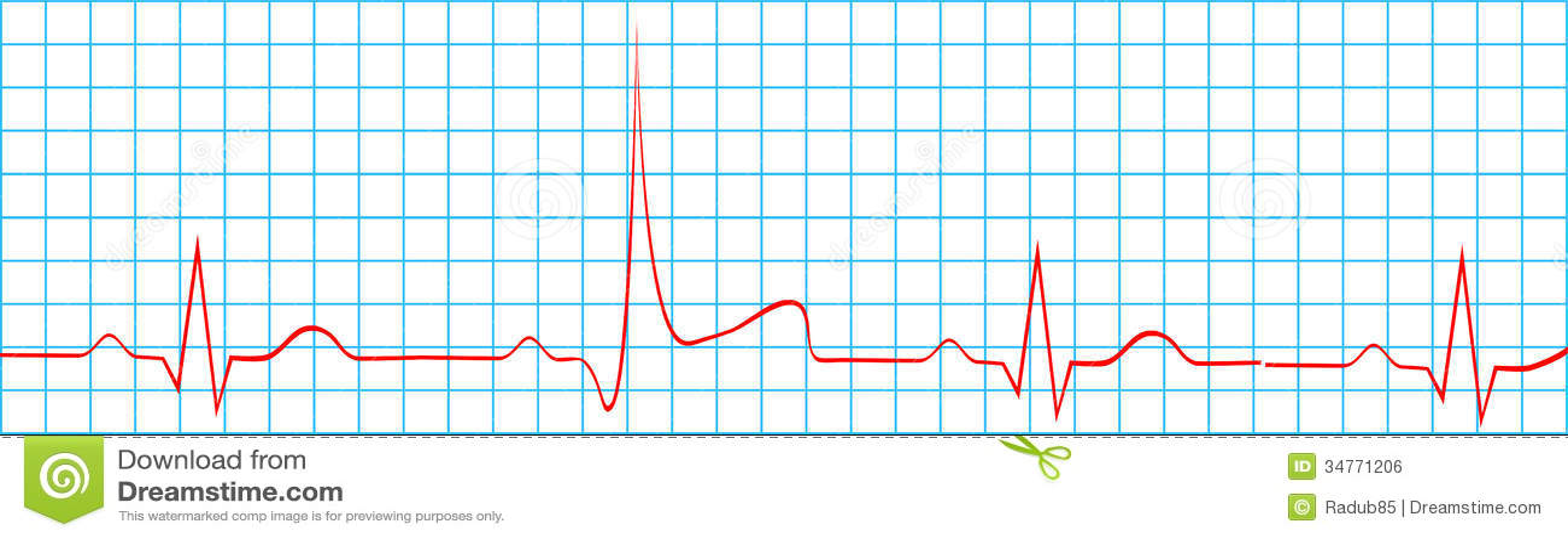 Heart Attack Stroke Electrocardiogram Record Vector Illustration Rhythm Illustrations Royalty Free