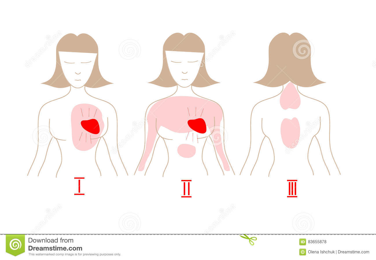 Image Result For Crise Cardiaque Symptome