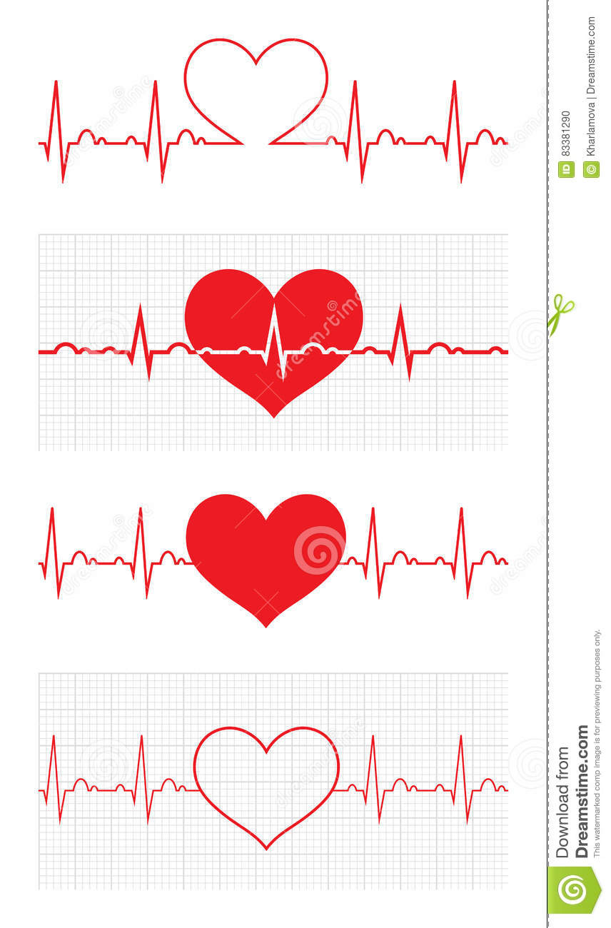 How to Choose a Treatment for Arrhythmia images