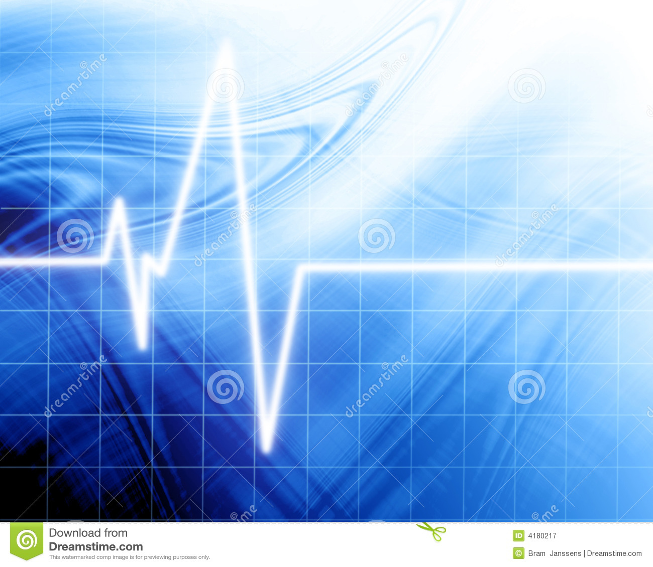 Heart Beat On Clinic Monitor Royalty Free Stock