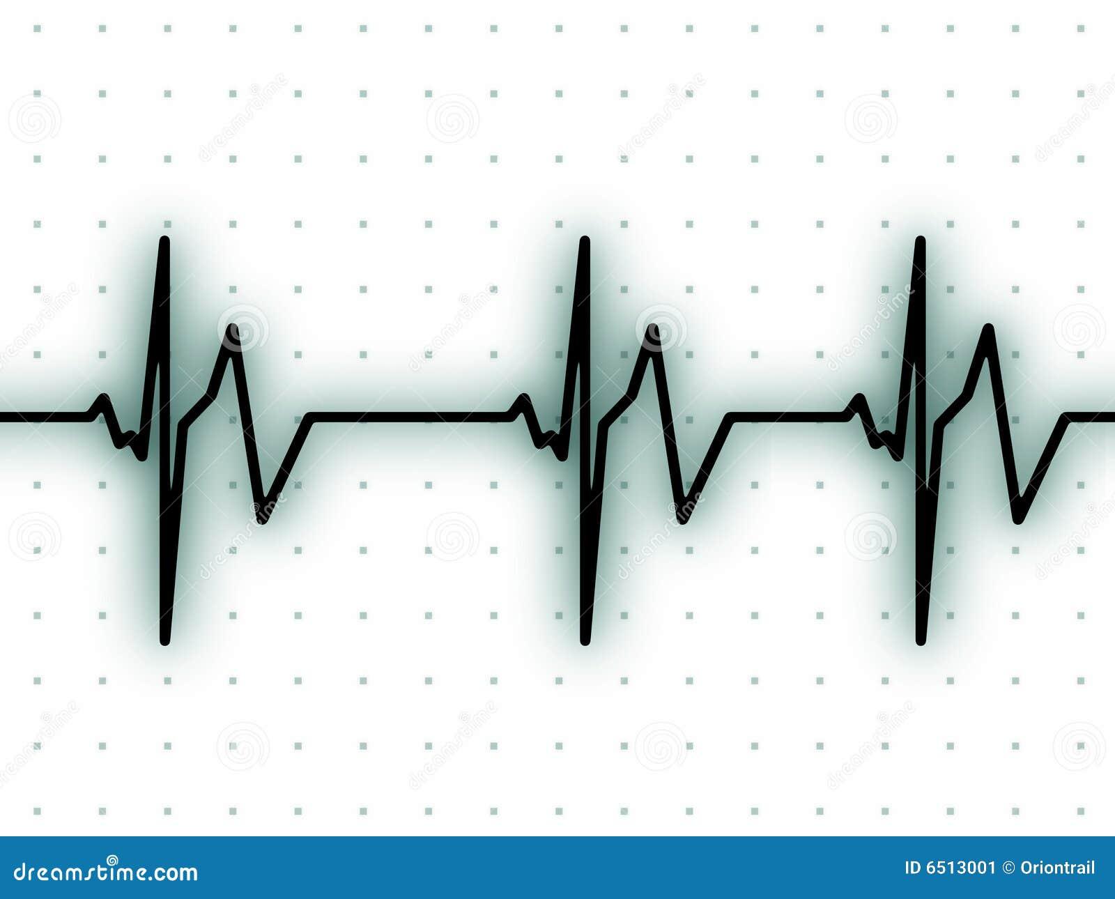 heart beat ecg screen 6513001