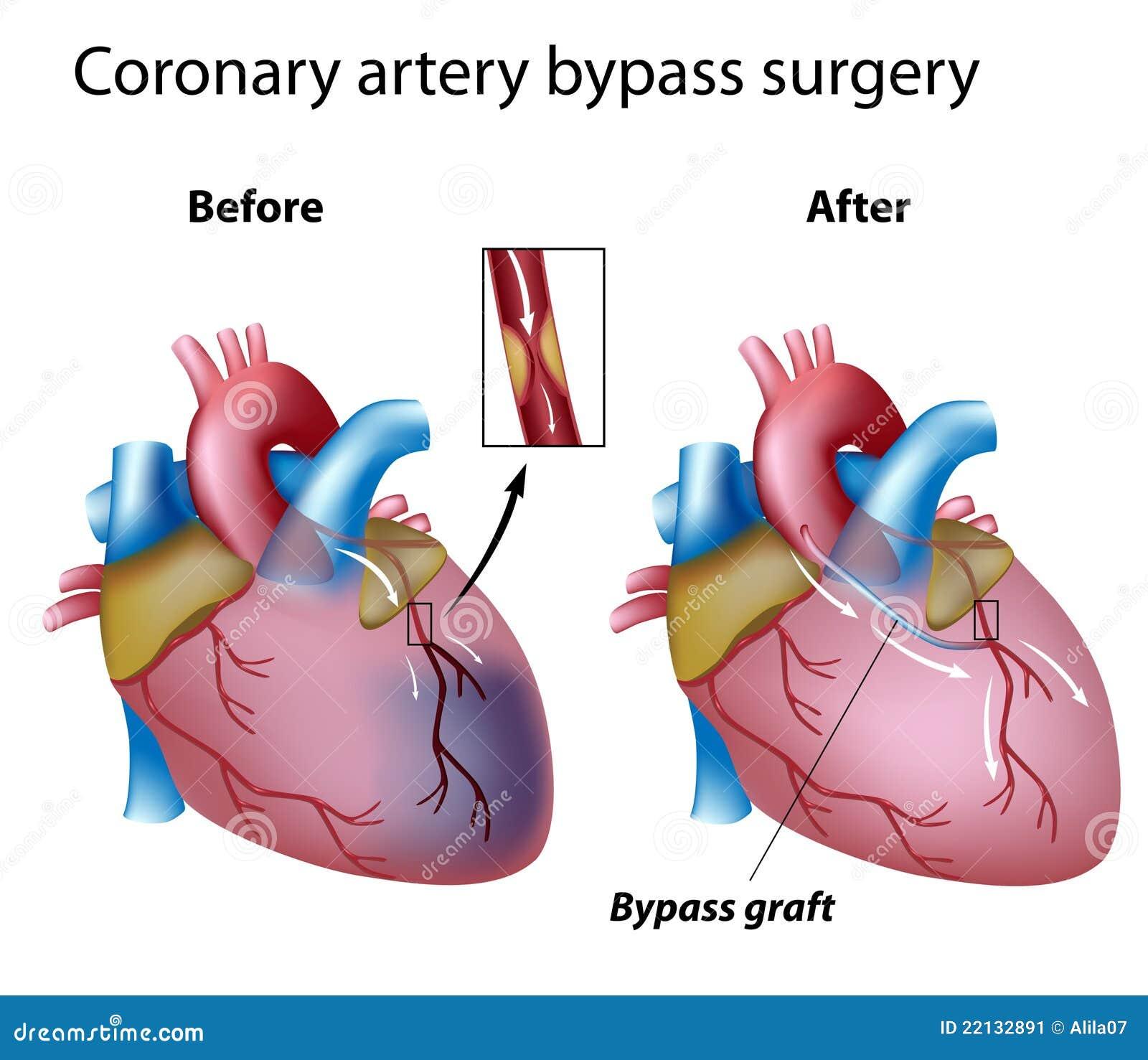 Heart bypass surgery stock vector. Illustration of cardiovascular ...