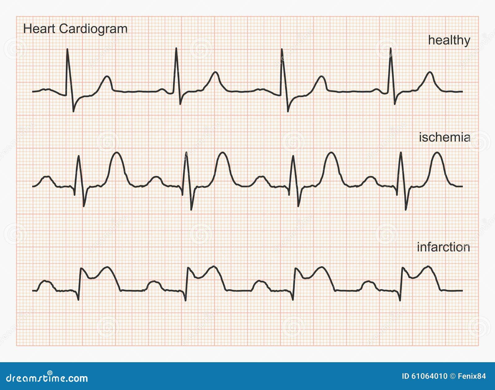 Heart Cardiogram Waves. Stock Vector - Image: 61064010