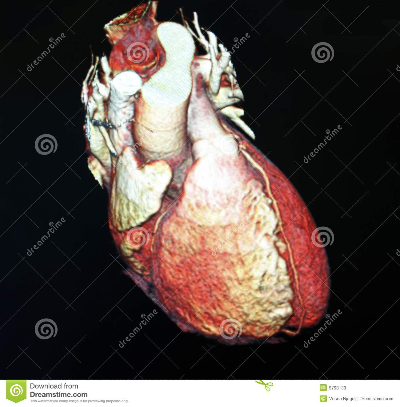 Heart Computed Tomography