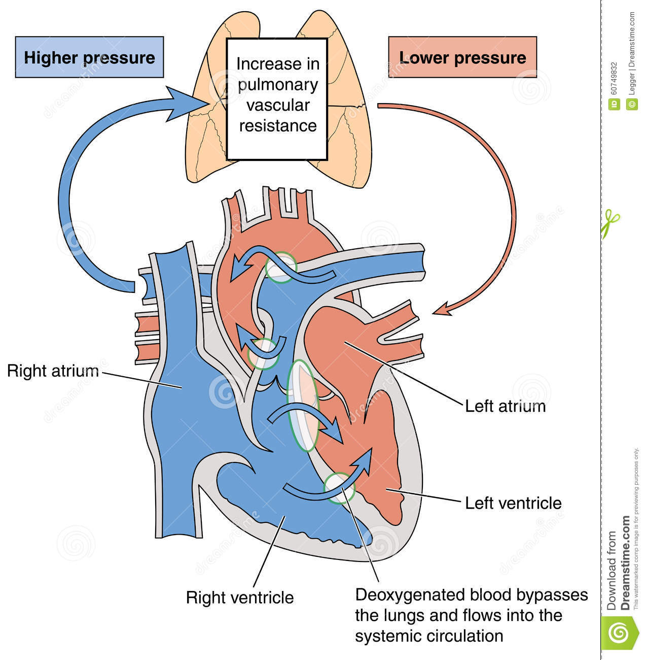Heart Defects Causing Eisenmenger Syndrome Stock Vector - Image ...