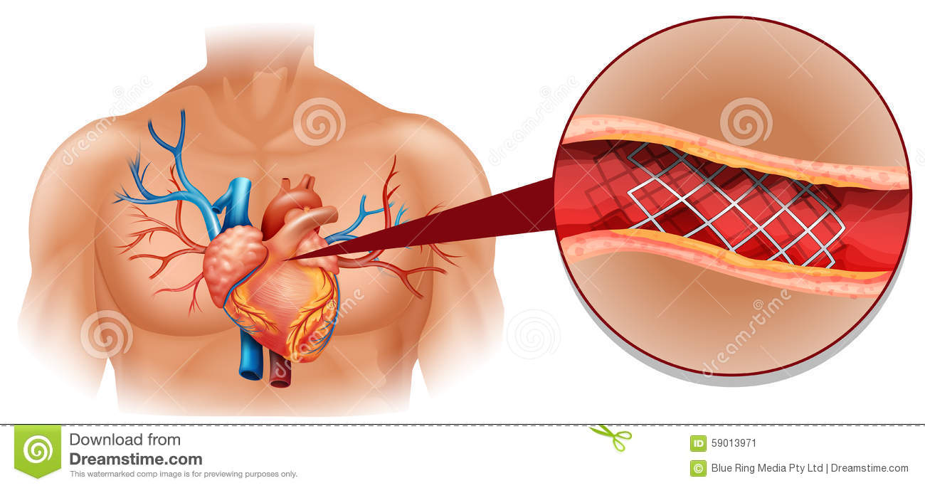 Heart disease diagram in human stock illustration illustration of download heart disease diagram in human stock illustration illustration of biology heart 59013971 ccuart Image collections