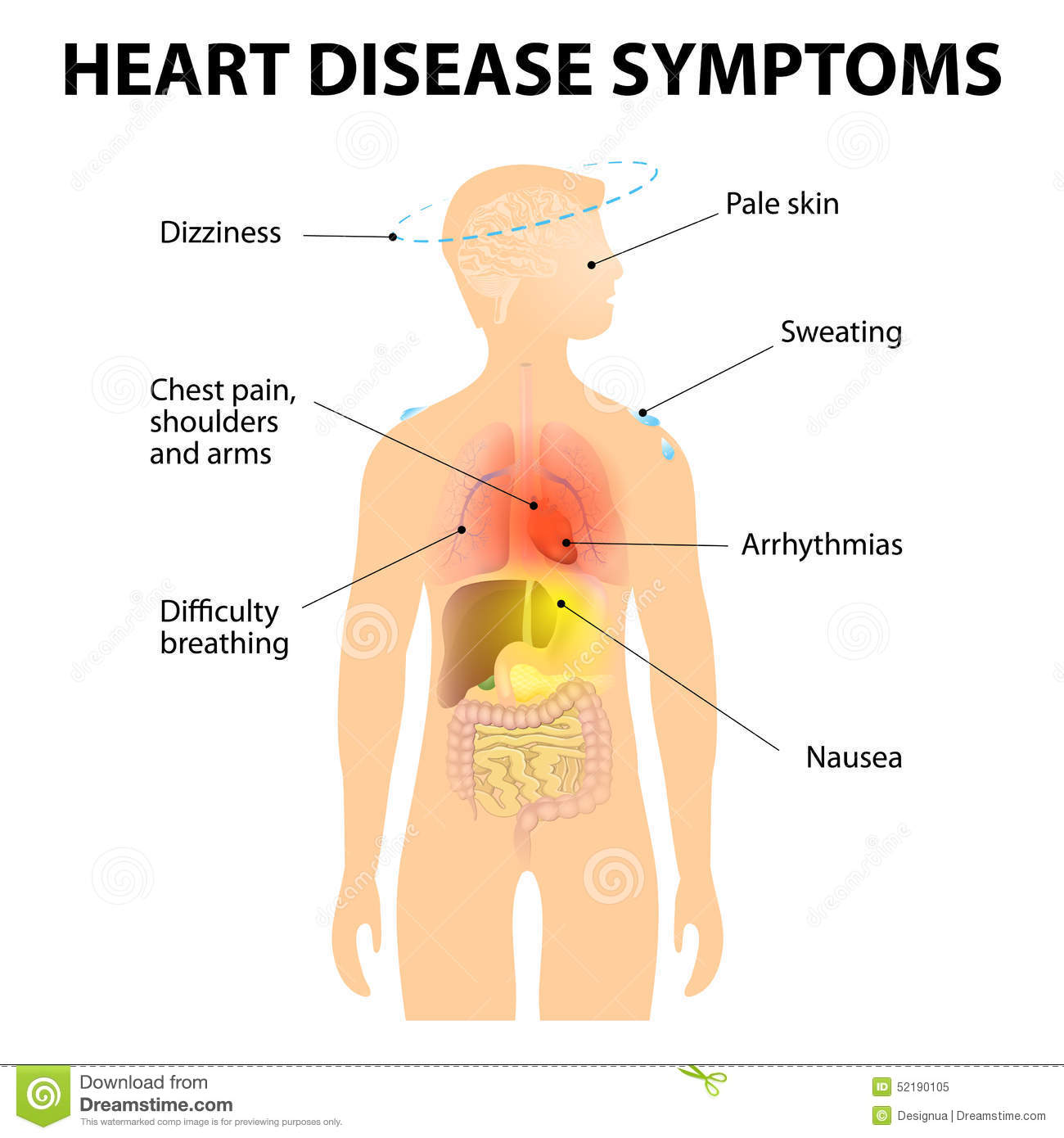 Heart disease - what it is Signs, diagnosis, treatment, surgery 93