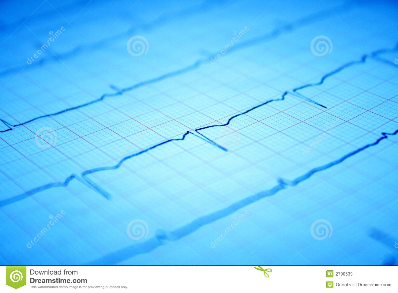 heart ecg graph on paper stock image  image of medicine
