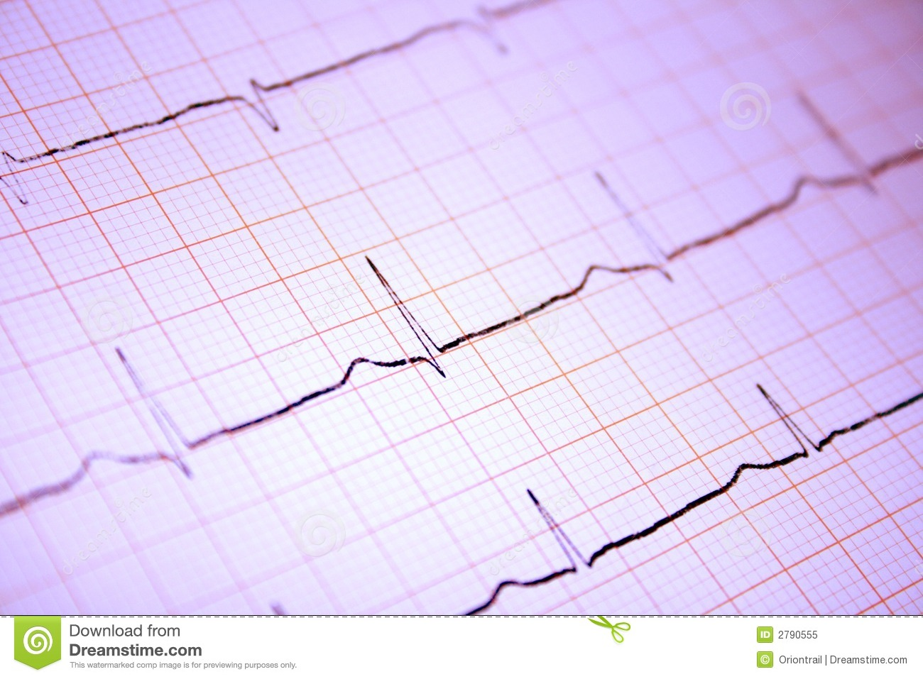 thesis on ecg data compression An lz approach to ecg compression a comparison between the ecg compression methods mentioned above and summary of ecg data compression schemes method.
