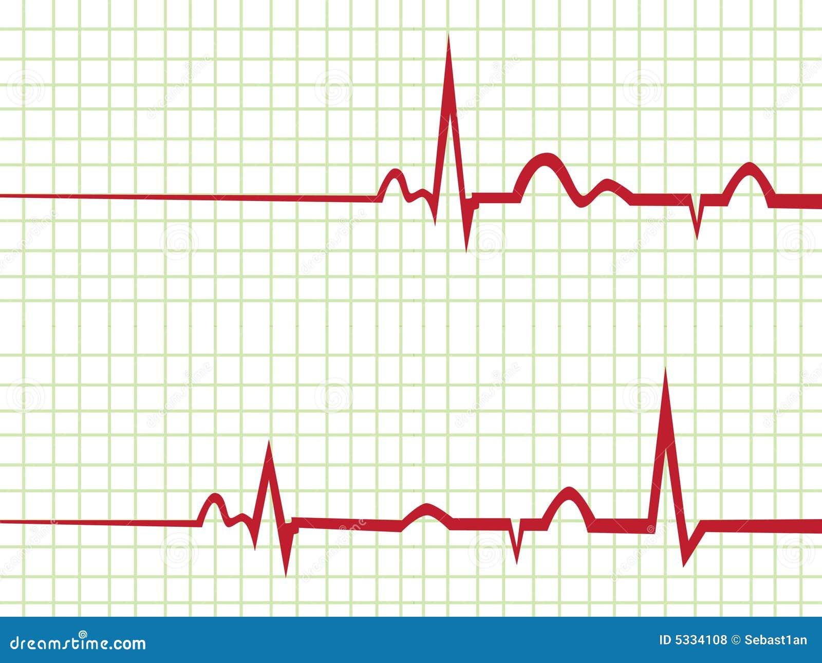 free heart monitor clipart - photo #39