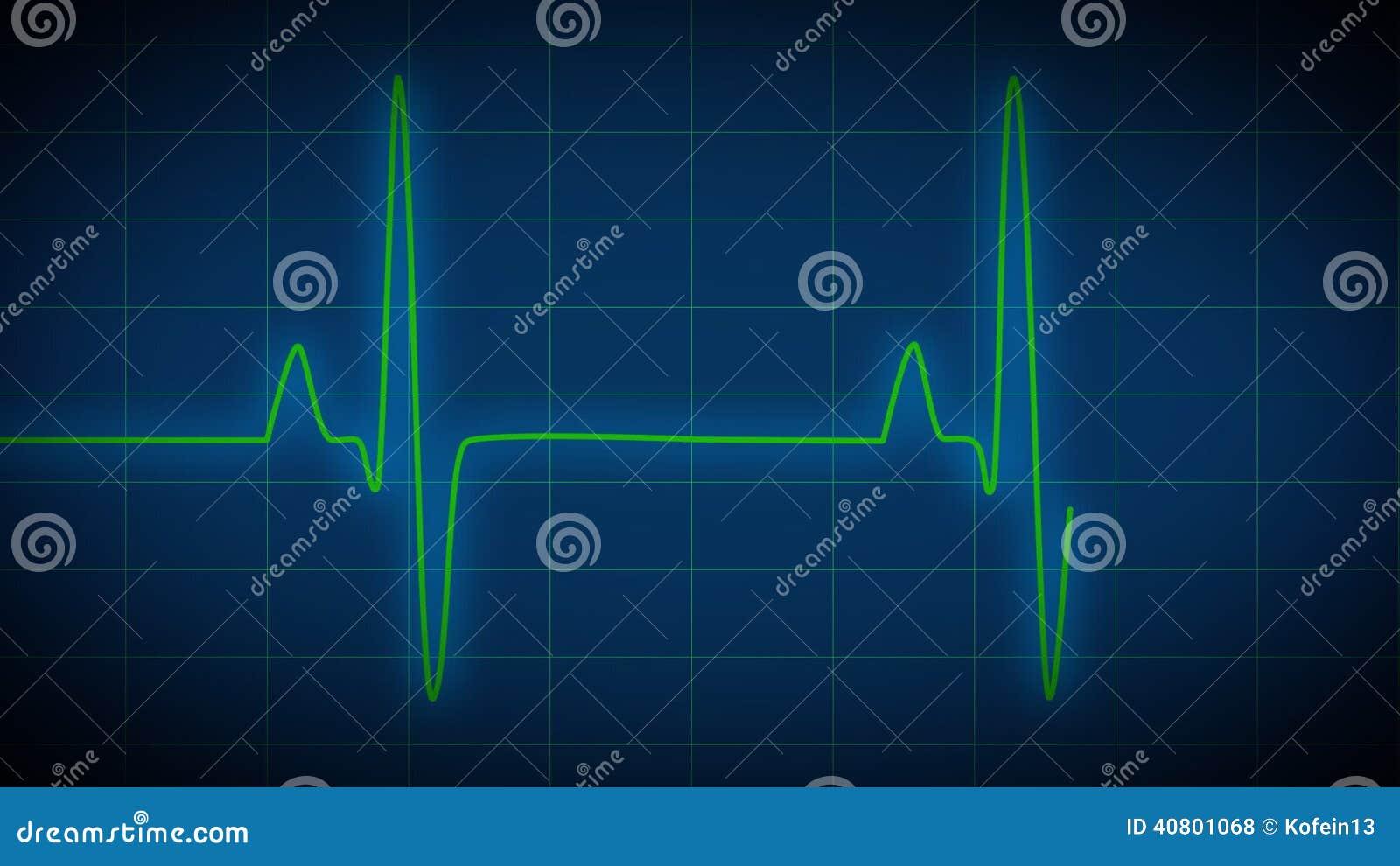 Heart monitor ekg stock footage illustration of medicine 40801068 ccuart Gallery
