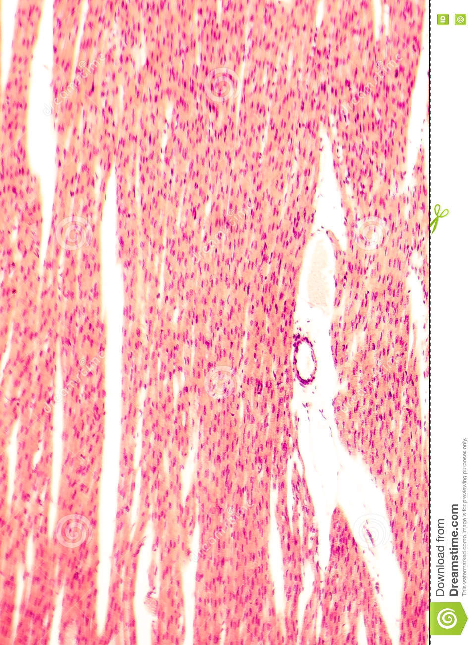 Heart Muscle Light Micrograph Stock Photo Image Of Microscopic