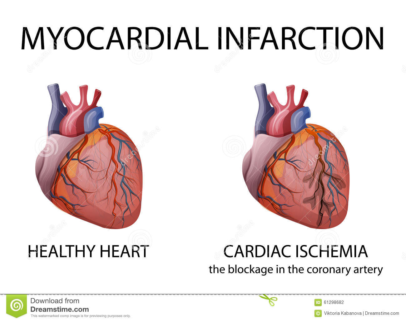 Heart. Myocardial Infarction. Stock Vector - Illustration of artery ...