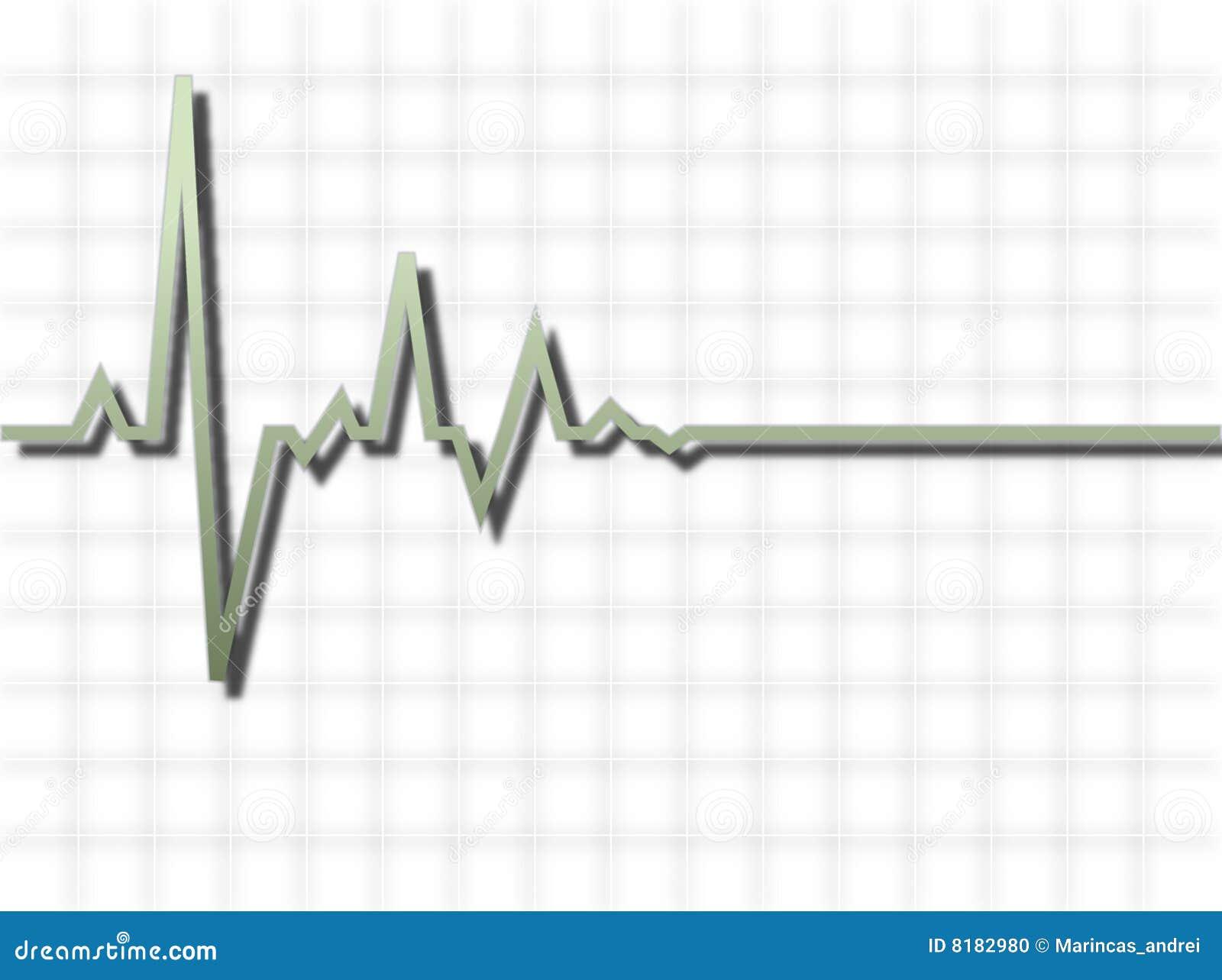 heart pulse illustration stock photo image 8182980. Black Bedroom Furniture Sets. Home Design Ideas