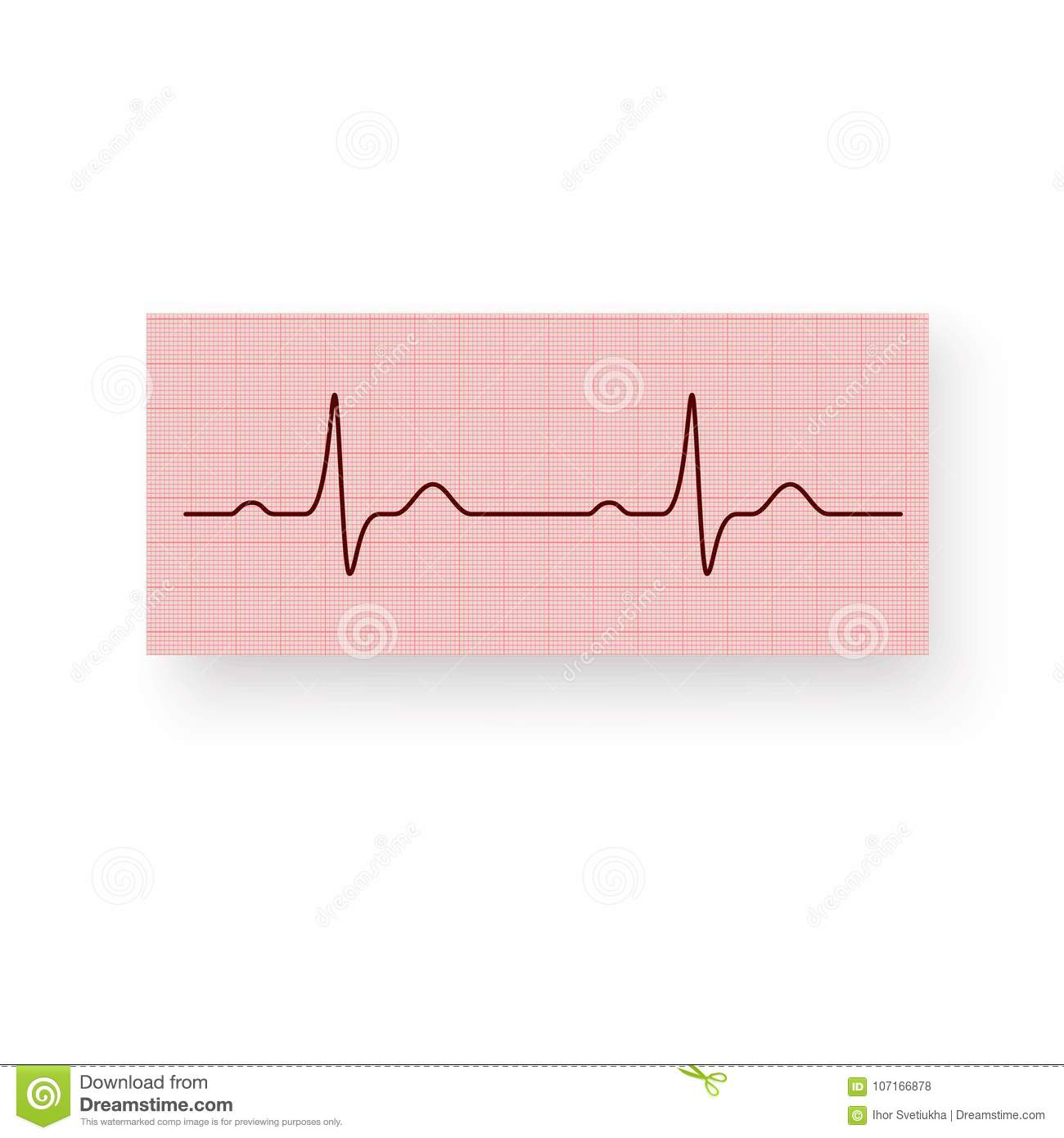 heart rate or a heartbeat on a plotting paper cardiogram of the